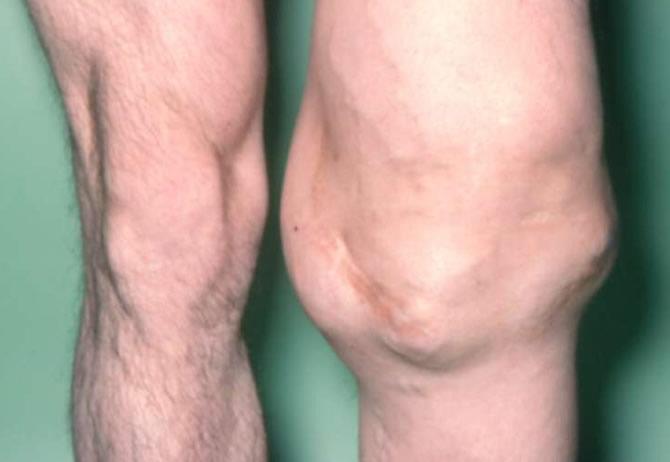 tumeur du genou