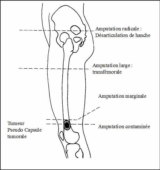traitement ostéosarcome