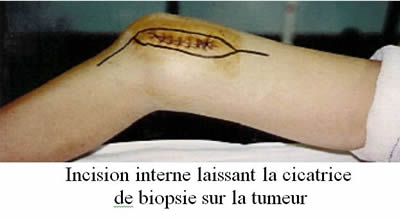 ablation tumorale
