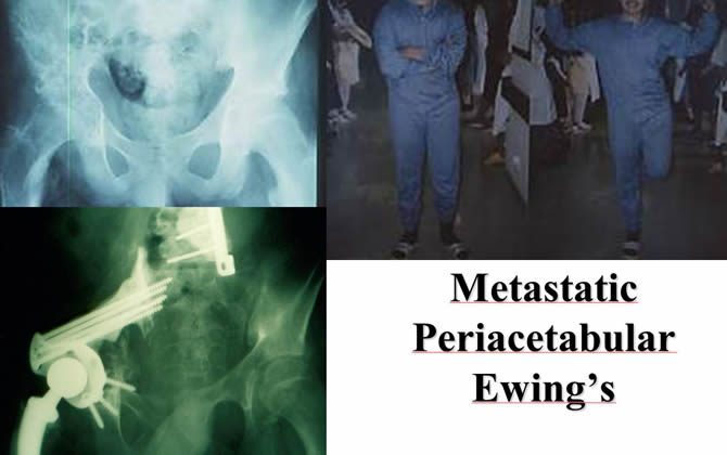 Metastatic Periacetabular Ewing's