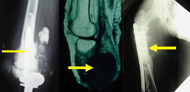 Skip in osteosarcoma
