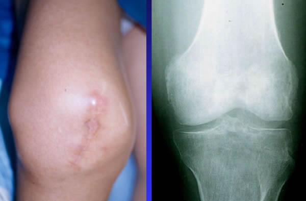 Cancer sarcoma jambe. Sarcoma cancer in hand. Understanding Soft Tissue Sarcoma anemie forma medie