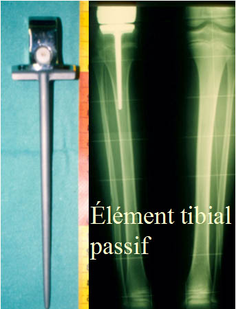 Element tibial