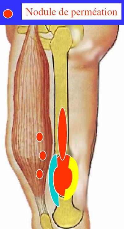 Pseudocapsule Tumorale