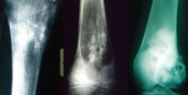 Ostéosarcomes anomalies de la trame osseuse