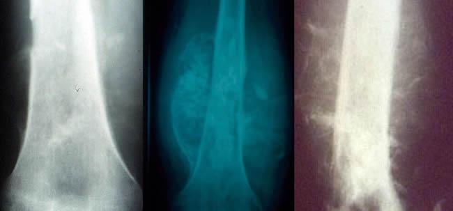 Ost�osarcomes Envahissement des parties molles