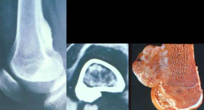 Ostéosarcomes juxta cortical