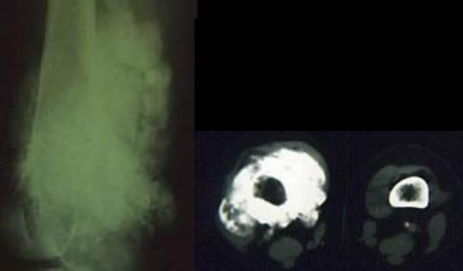 Ostéosarcomes juxta cortical évolué