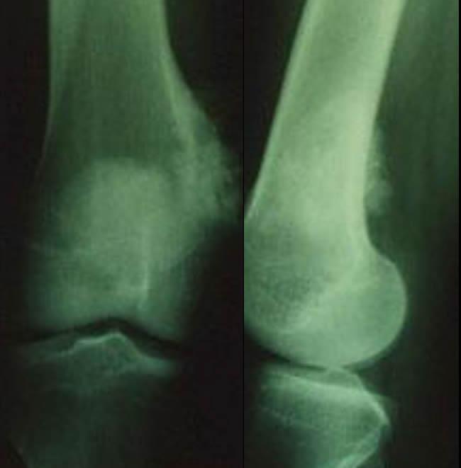 Ostéosarcomes aspect moins évocateur