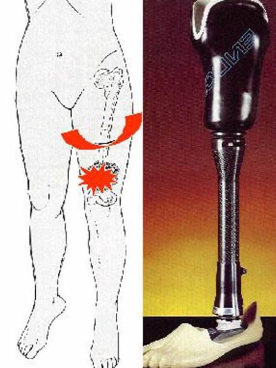 sarcome du genou