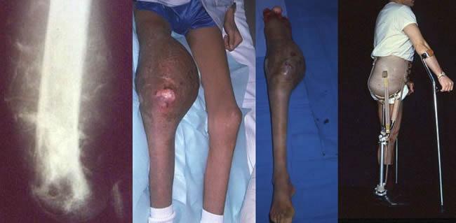 ostéosarcome du fémur