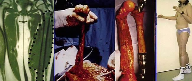 reconstruction par prothèse +greffe