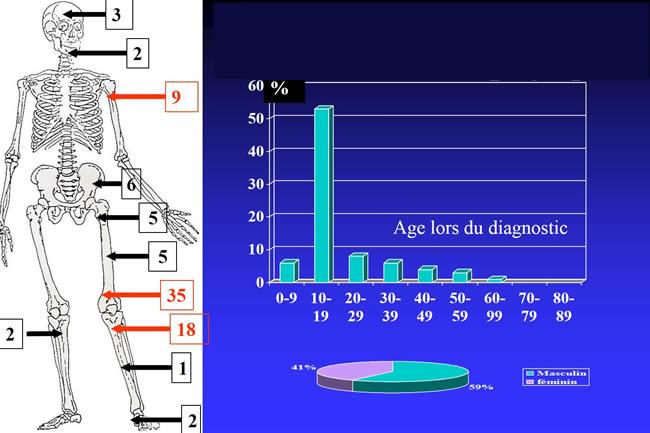 fréquence ostéosarcome