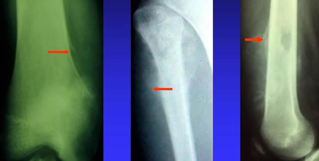 radiographies ostéosarcome