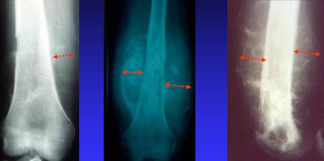 parties molles ostéosarcome