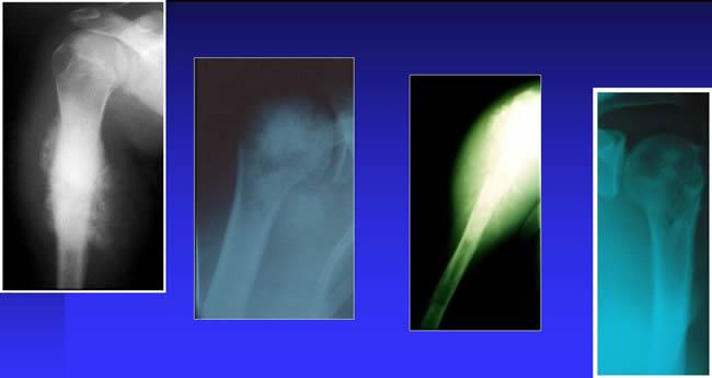 ostéosarcomes typiques