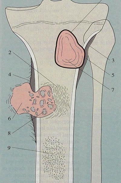 ostéosarcomes bénin ou malin