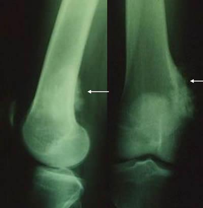ostéosarcomes aspect moins typique