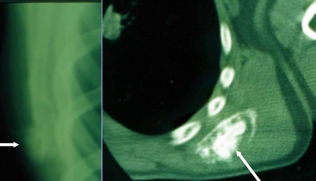 ostéosarcomes scanner