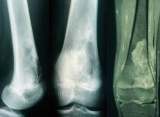 ostéosarcomes IRM