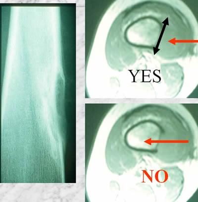 periostal ewing sarcoma