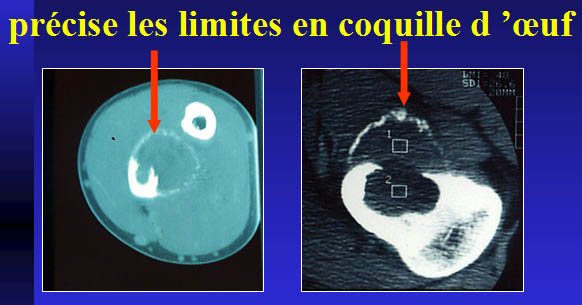 Limite en coquille d'oeuf